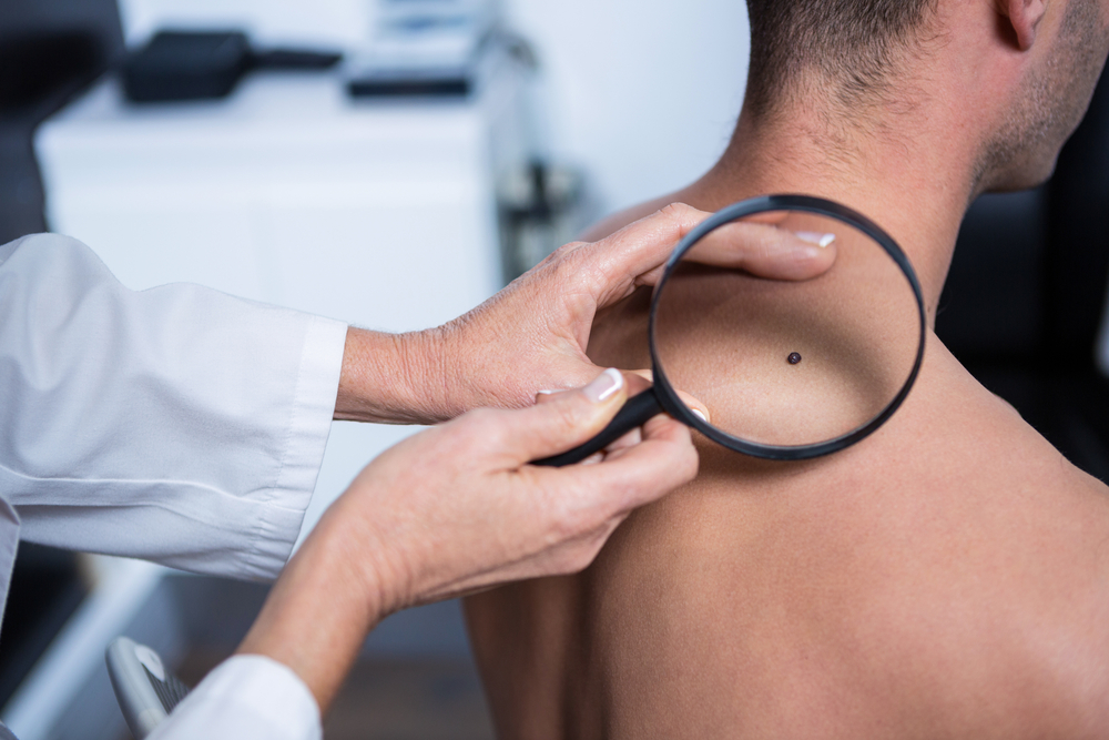 Ask The Doctors Common Questions About Skin Cancer